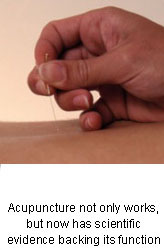 Science Behind Acupuncture