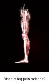 sciatica causing leg pain