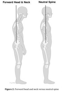 Forward Head Posture vs Neutral Posture