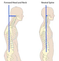 forward and neutral neck postures