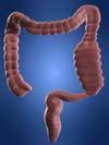 constipated colon