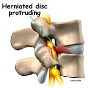 herniated disc exercises