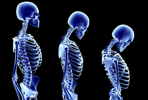 Stages of Osteoporosis