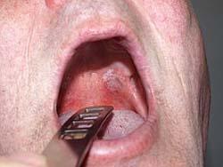 White Leukoplakia Tongue