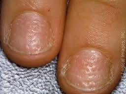 pitted fingernails
