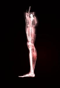 sciatica remedy