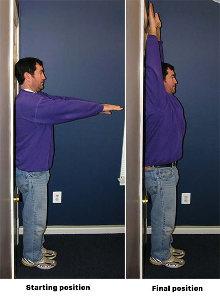 Standing arm exercise for spondylolisthesis