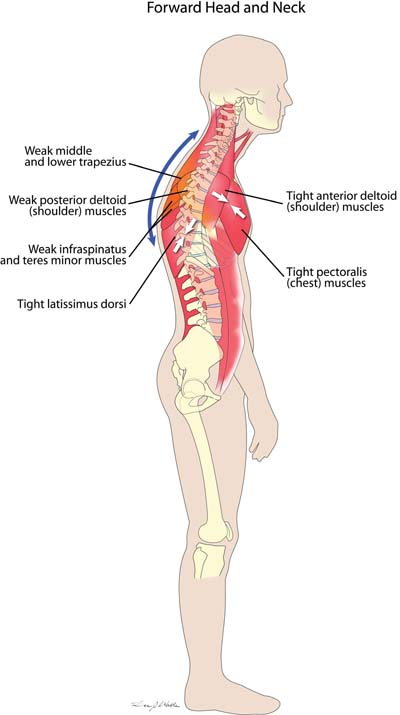 Forward Head and Neck Muscle Imbalance
