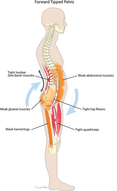 Forward Tipped Pelvis Muscle Imbalance