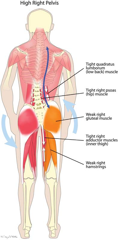 High Hip Muscle Imbalance