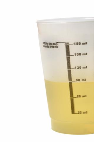 urine symptoms