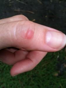 hive on thumb
