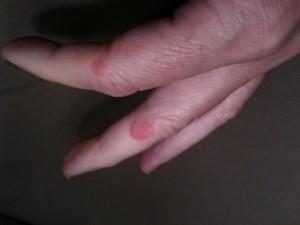 hives on finger