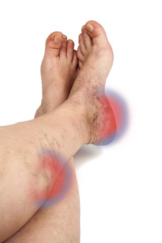 eliminate varicose spider veins
