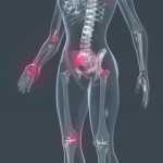 systemic enzymes fibromyalgia