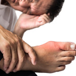 natural treatments for gout
