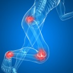 What Happens to Your Body to Cause Pain