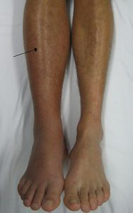 leg deep vein thrombosis (dvt)