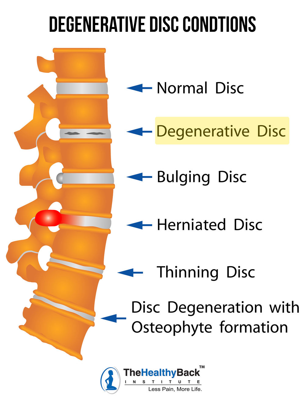 degenerative disc disease, degenerative disc conditions