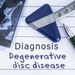 Diagnosis: Degenerative Disc Disease