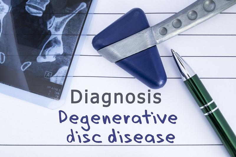 Diagnosis: Degenerative Disc Disease