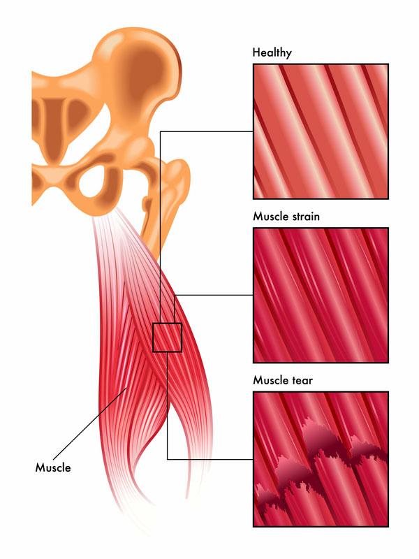 muscle strain muscle tear