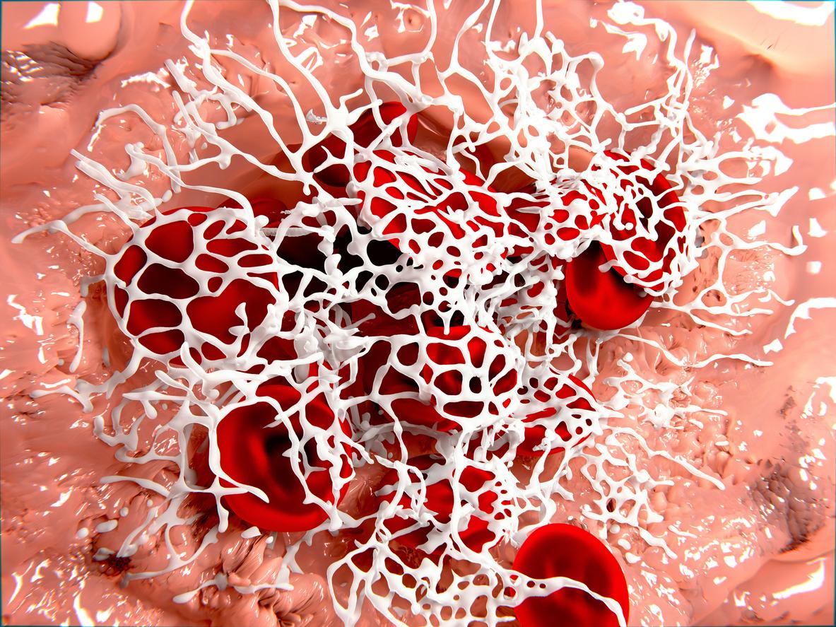 fibrin blood clot